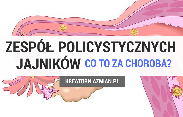 pcos co to za choroba